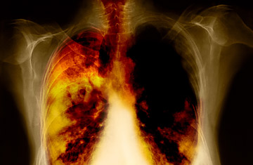 11334155-4th-stage-of-lung-cancer